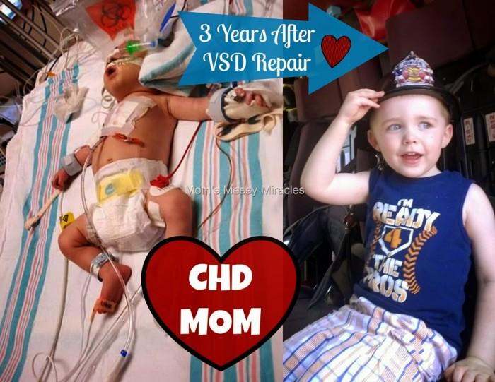 3 Years After VSD Repair